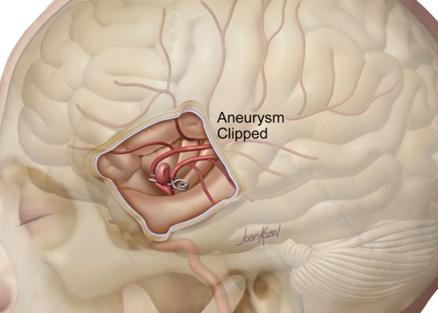 aneurysm clipped