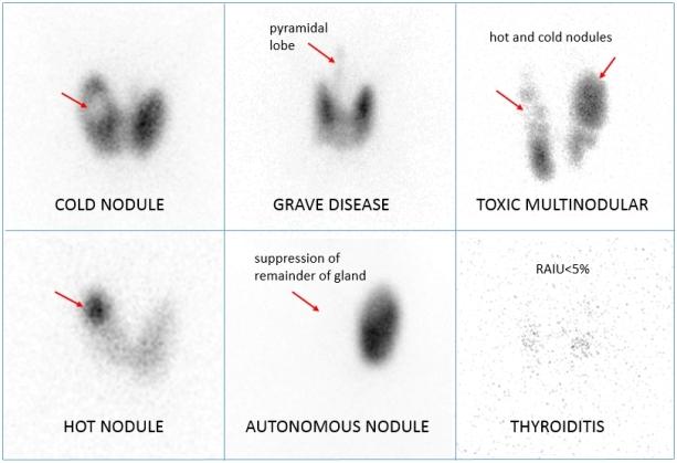 radioactive iodine uptake scan