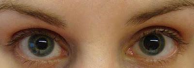 Unequal-Pupils-Deborah-Austin