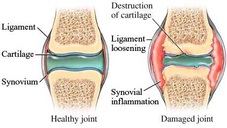 healthy joint vs. damaged joint