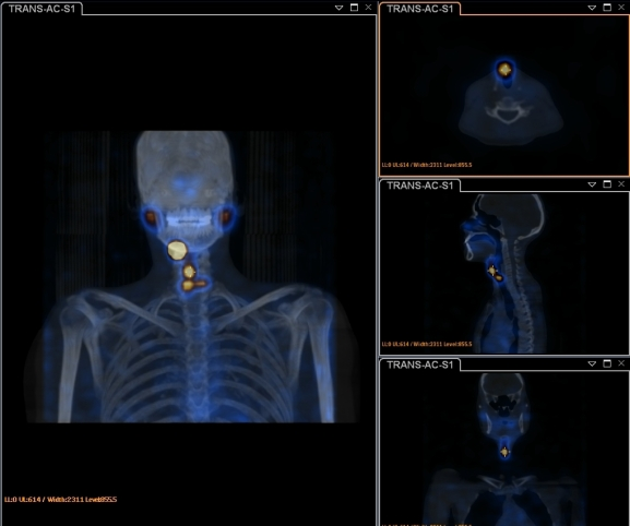 metscan with SPECT CT2
